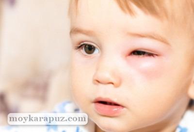 Что делать, если ребенка укусила оса