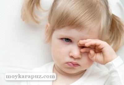 Халязион у ребенка: как лечить и не допустить появления