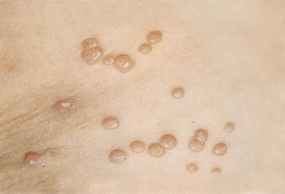 Сыпь контагиозного моллюска