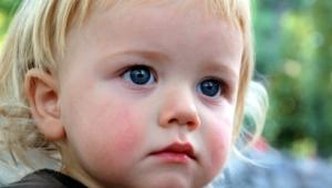 Лишай у детей: причины возникновения, симптомы, лечение